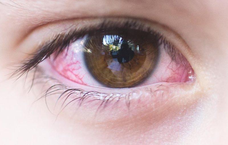 pink eye treatment