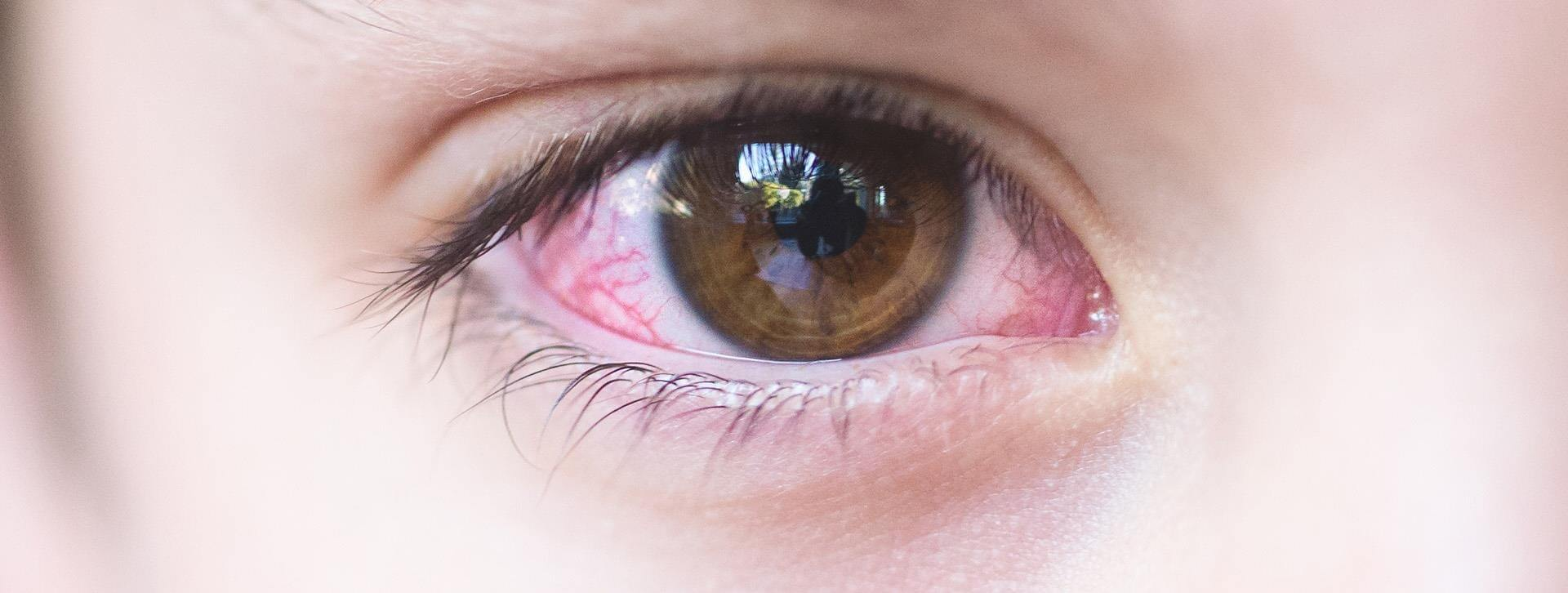 All You Need To Know About Pink Eye